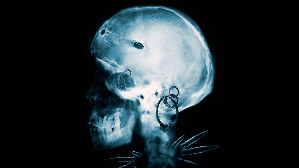facdebdfece-PIC-MCH032900-1024x576 X Ray Skull Wallpaper 40+